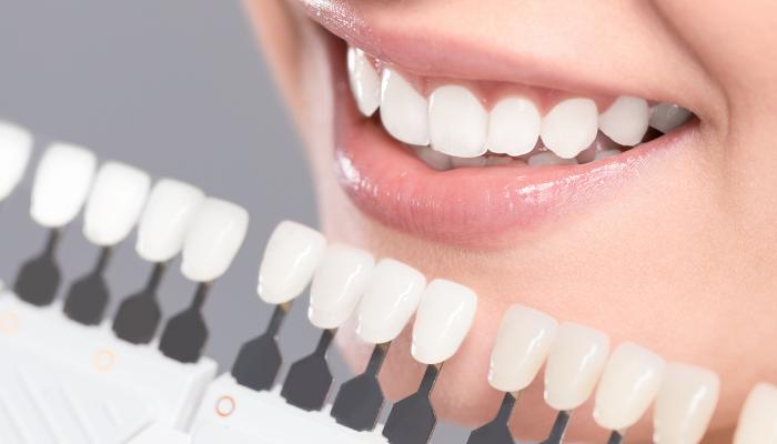 Blek dina tänder hemma